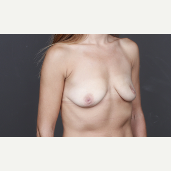 25-34 year old woman treated with Breast Augmentation before 2993254