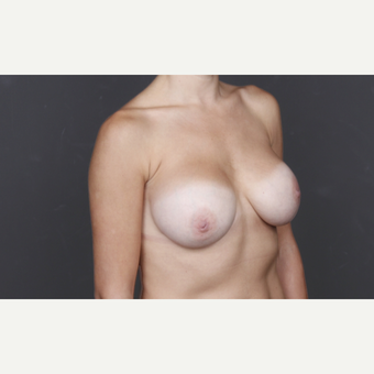 25-34 year old woman treated with Breast Augmentation after 2993254