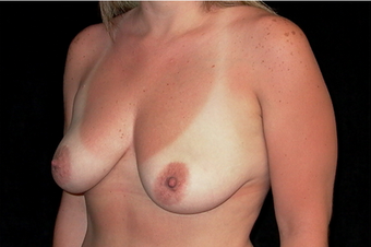 Breast augmentation and mastopexy 391333