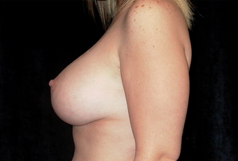 Breast augmentation and mastopexy after 391333