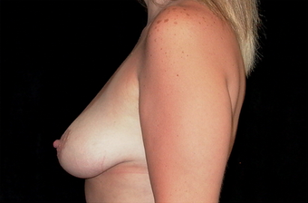 Breast augmentation and mastopexy before 391333