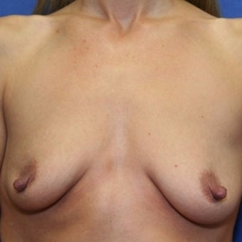38 year old woman treated with bilateral breast augmentation before 2337192