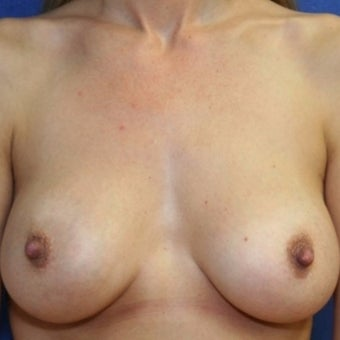 38 year old woman treated with bilateral breast augmentation after 2337192