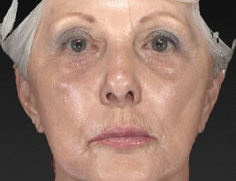 65-74 year old woman treated with Brow Lift after 3577913