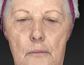 65-74 year old woman treated with Brow Lift before 3577913