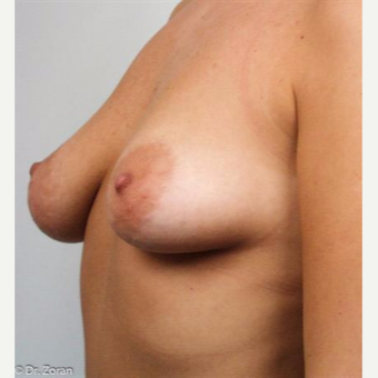 18-24 year old woman treated with Breast Lift before 3033052