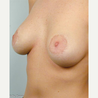 18-24 year old woman treated with Breast Lift after 3033052