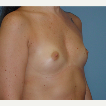 25-34 year old woman treated with Breast Augmentation before 3136260