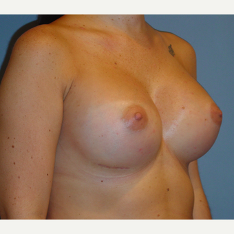 25-34 year old woman treated with Breast Augmentation after 3136260
