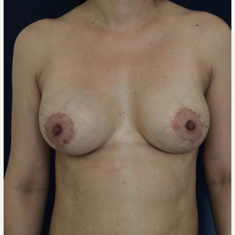 35-44 year old woman treated with Breast Implant Revision after 3836244