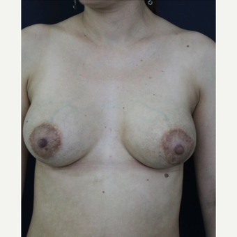 35-44 year old woman treated with Breast Implant Revision before 3836244