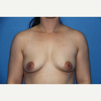25-34 year old woman treated with Breast Augmentation before 3501796