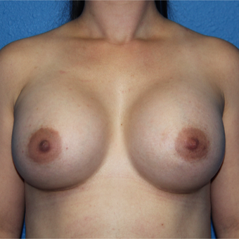 25-34 year old woman treated with Breast Augmentation after 3501796