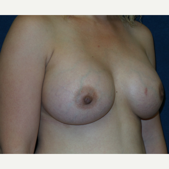 25-34 year old woman treated with Breast Implants after 3454938