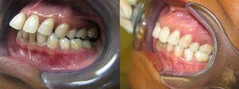 Invisalign (severe overbite) before 1395567