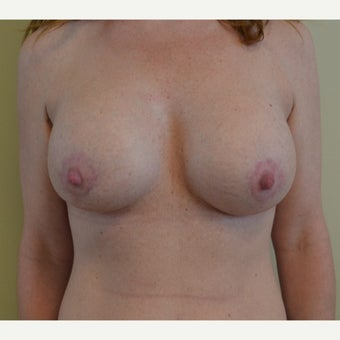 25-34 year old woman treated with Breast Lift with Implants after 1722295