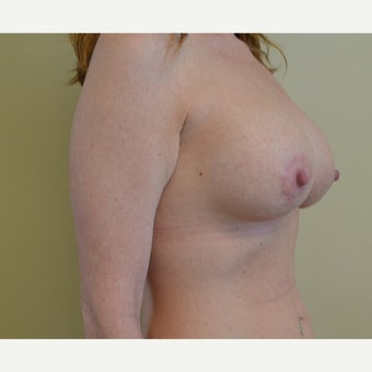 25-34 year old woman treated with Breast Lift with Implants 1722295