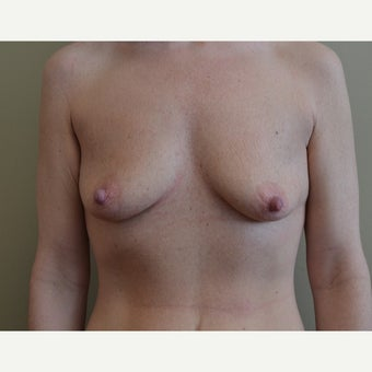 25-34 year old woman treated with Breast Lift with Implants before 1722295