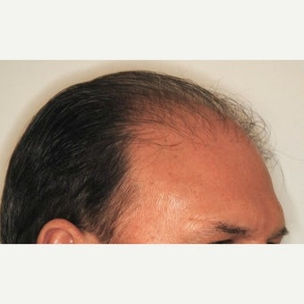 55-64 year old man treated with NeoGraft before 2030242