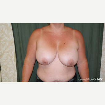 35-44 year old woman treated with Breast Lift/Reduction before 3664921