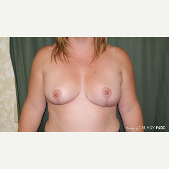 35-44 year old woman treated with Breast Lift/Reduction after 3664921