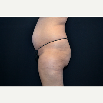 25-34 year old woman treated with Liposuction before 3055040