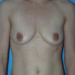 25 Year Old Female before 1259796