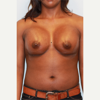 25-34 year old woman treated with Breast Augmentation after 3026848