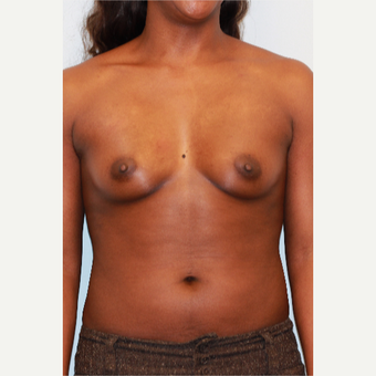 25-34 year old woman treated with Breast Augmentation before 3026848