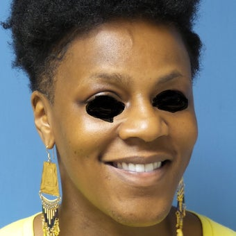35-44 year old woman treated with African American Rhinoplasty before 2092662