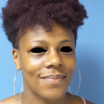 35-44 year old woman treated with African American Rhinoplasty after 2092662