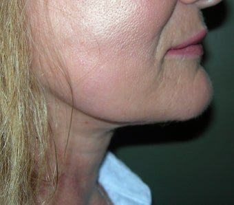 57 Year Old Treated for Sagging Neck and Jowls 1326021