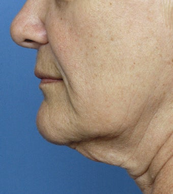 57 Year Old Treated for Sagging Neck and Jowls before 1326021