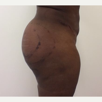 35-44 year old woman treated with Fat Transfer after 3658184
