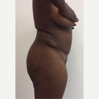 35-44 year old woman treated with Fat Transfer before 3658184