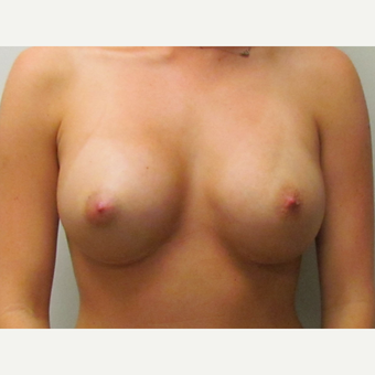 Breast Implant Revision - Correction of Symmastia after 3030401