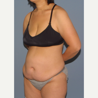 35-44 year old woman treated with Tummy Tuck before 3531226
