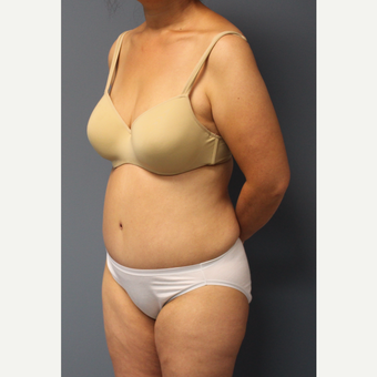 35-44 year old woman treated with Tummy Tuck after 3531226