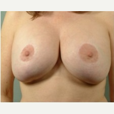 25-34 year old woman treated with Breast Reduction before 3327016