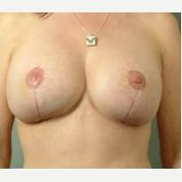 25-34 year old woman treated with Breast Reduction after 3327016