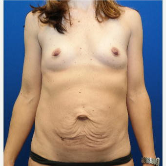 35-44 year old woman treated with Mommy Makeover before 3109808