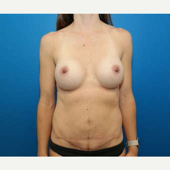35-44 year old woman treated with Mommy Makeover after 3109808