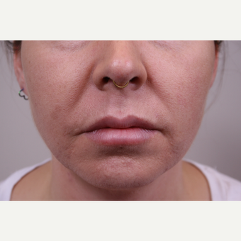 35-44 year old woman treated with Juvederm after 3141952