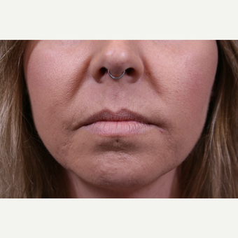 35-44 year old woman treated with Juvederm before 3141952