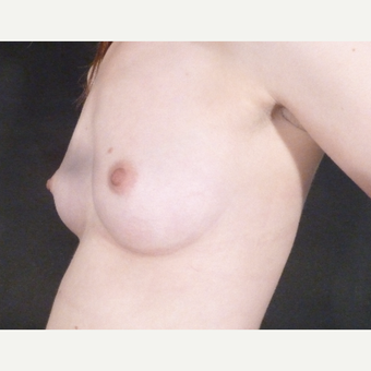 18-24 year old woman treated with Breast Augmentation before 3832873