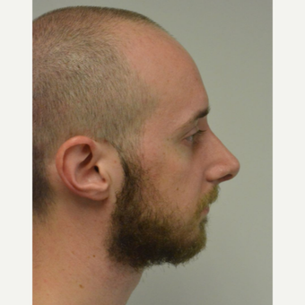 25-34 year old man treated with Nose Surgery after 3099127