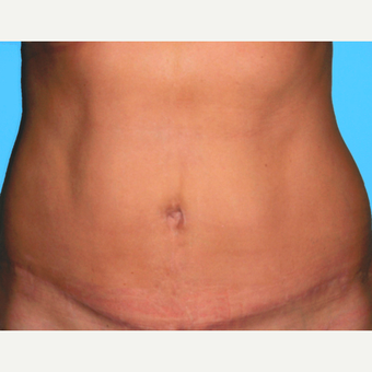 Tummy Tuck after 3810852