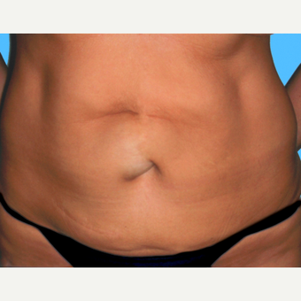 Tummy Tuck before 3810852