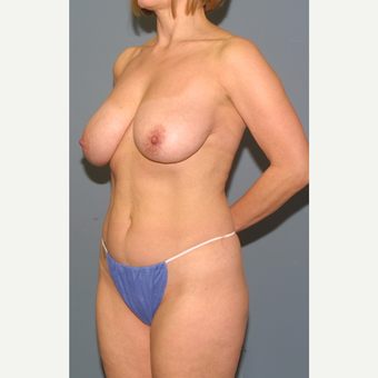 45-54 year old woman treated with Breast Reduction before 3453288