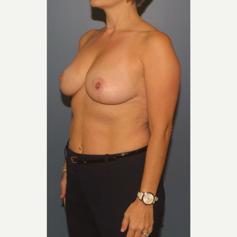 45-54 year old woman treated with Breast Reduction after 3453288